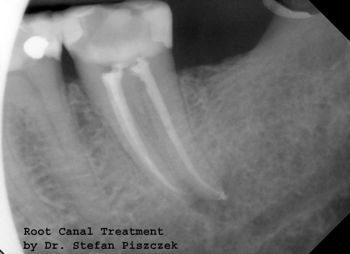 Cracovia Dental - Root Canal Treatment
