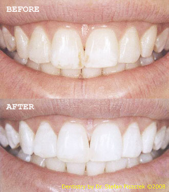 Cracovia Dental - Whitening Before and After